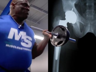 ronnie coleman injuries