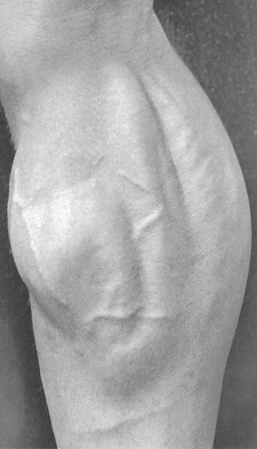 calf-bump-002